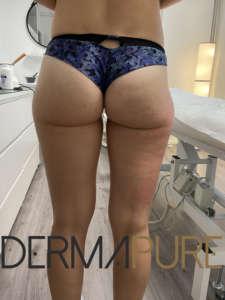 Fesses de femme sans cellulite