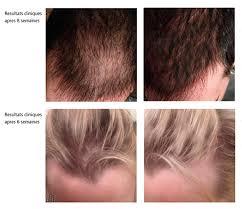 Medical JETOP - Cheveux homme et femme (avant / après)