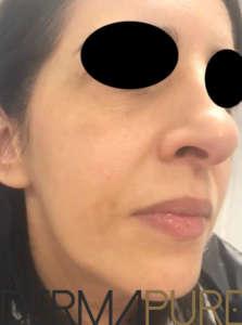 Peeling du visage (après)