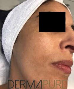 Peeling de la peau (avant)
