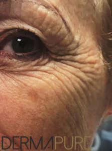 Peeling des yeux (avant)