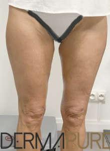 Jambes de femme mature sans relâchement cutané