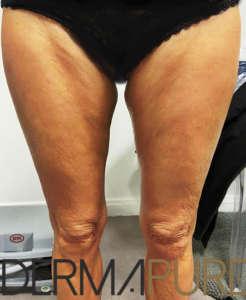 Jambes de femme mature avec relâchement cutané