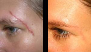 Traitement des cicatrices par LED (avant / après)