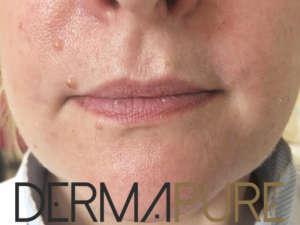 Augmentation du volume des lèvres (avant)