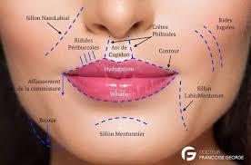Comblement des sillons naso-géniens et lèvres